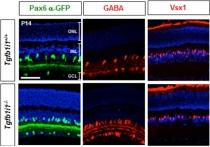 야간이나 어두운 곳에서 명암 인식하는 망막신경세포 발견