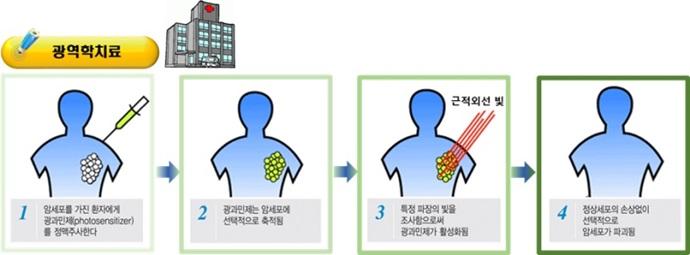 [Technical News]광역학치료제, 암세포 표적률 높인다 - 다아라매거진 기술뉴스