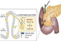 광(光)역학 치료로 비만 등 대사성 질환 치료 박차